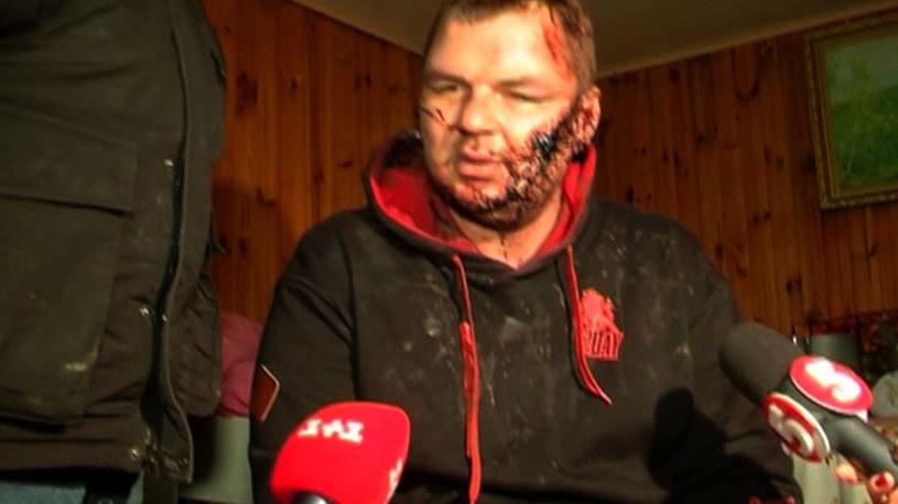 Dmytro Bułatow po odnalezieniu z widocznymi, okropnymi bliznami na twarzy /CHANNEL 5 /AFP