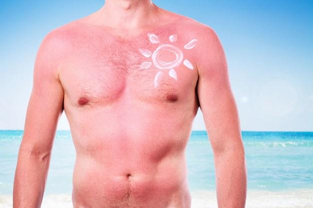 Domowe sposoby pomogą w przypadku oparzeń słonecznych /123/RF PICSEL