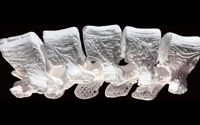 Drukarka 3D pomoże w łączeniu uszkodzonych kości /materiały prasowe