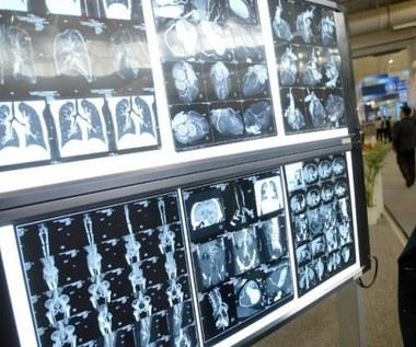 Drukarki przestrzenne pomogą w odbudowie kości