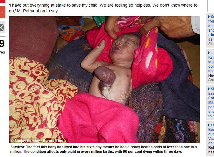Dziecko urodziło się z sercem poza ciałem/ screen z  www.dailymail.co.uk /