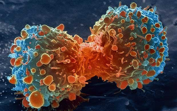 Dzielące się komórki raka płuc wykonane skaningowym mikroskopem elektronowym (Fot. National Institutes of Health) /materiały prasowe