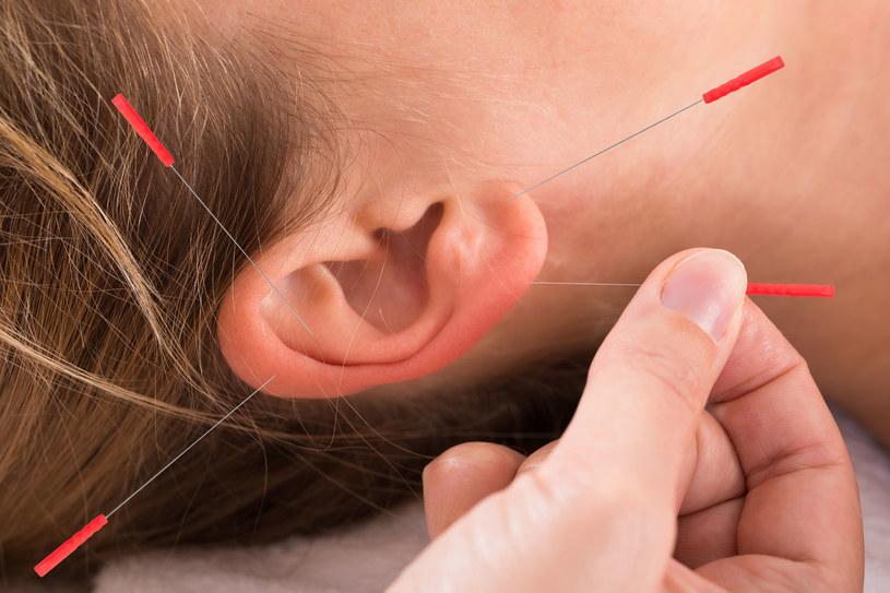 Efekty terapii można zauważyć już po kilku zabiegach /123RF/PICSEL