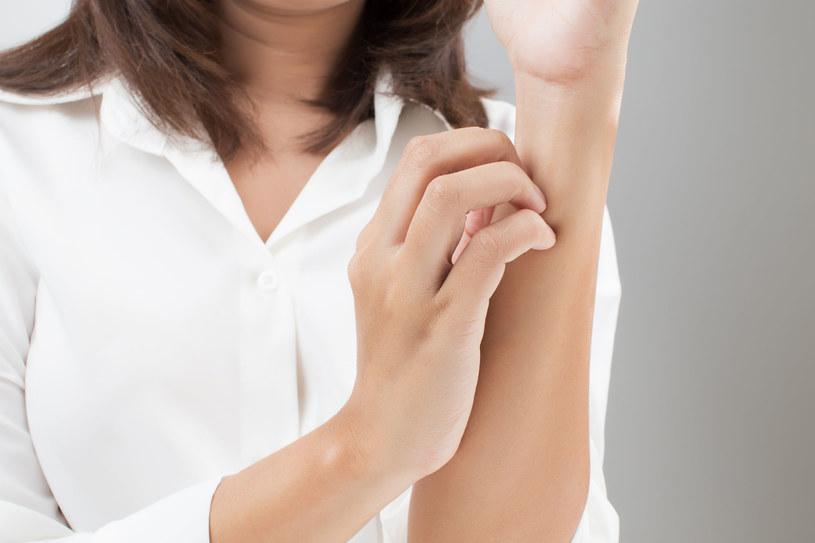 Egzema to powierzchniowy stan zapalny skóry, do którego dochodzi na tle alergicznym /123RF/PICSEL