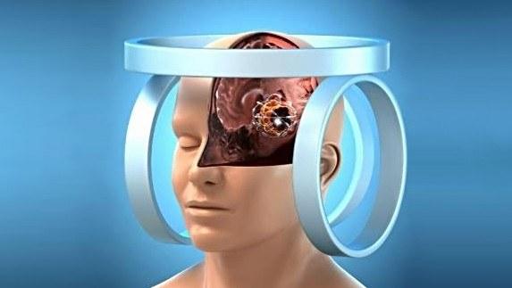 Eksperymentalna terapia może być przydatna szczególnie w przypadku guzów mózgu /materiały prasowe