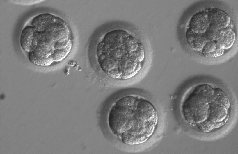 Embriony po edycji genu i trzech podziałach /OHSU/Mitalipov lab /materiały prasowe