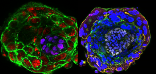 Epiblast - po lewej na fioletowo, po prawej na fioletowo-biało /fot. University of Cambridge /materiały prasowe