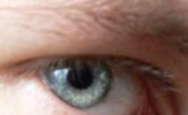 Genetycznie uratować wzrok