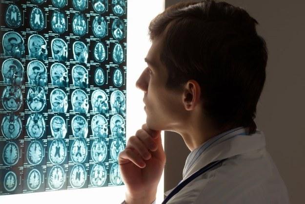 Guzy mózgu powstają z jednej komórki-renegata /©123RF/PICSEL
