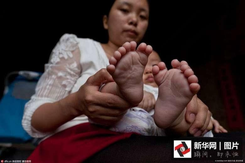 Hong Hong urodził się z 31 palcami /materiały prasowe