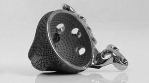 Implant biodra z drukarki 3D