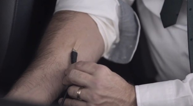 """""""Implant"""" w ramieniu pozwalający na """"podłączenie się"""" do systemu multimedialnego przez USB /"""
