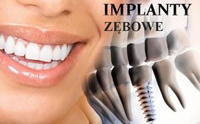 Implanty zębowe Wrocław, implant stomatologiczny, implanty stomatolog,