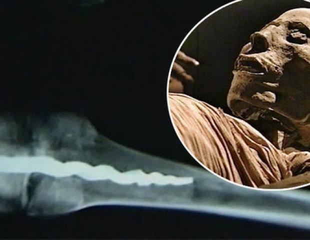 Jak się okazuje, starożytni chirurdzy potrafili wykonać zabiegi podobne do tych znanych z współczesnej medycyny /Innemedium.pl