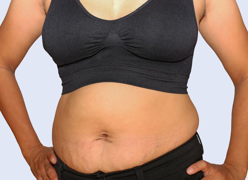 Jak ujawniły same badane, najbardziej niezadowolone są ze swojego brzucha /Picsel /123RF/PICSEL