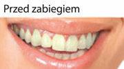 Jak wybielić zęby ?
