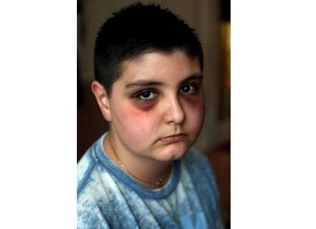 Jakub został napadnięty w czasie lekcji /www.newsnortheast.org.uk /