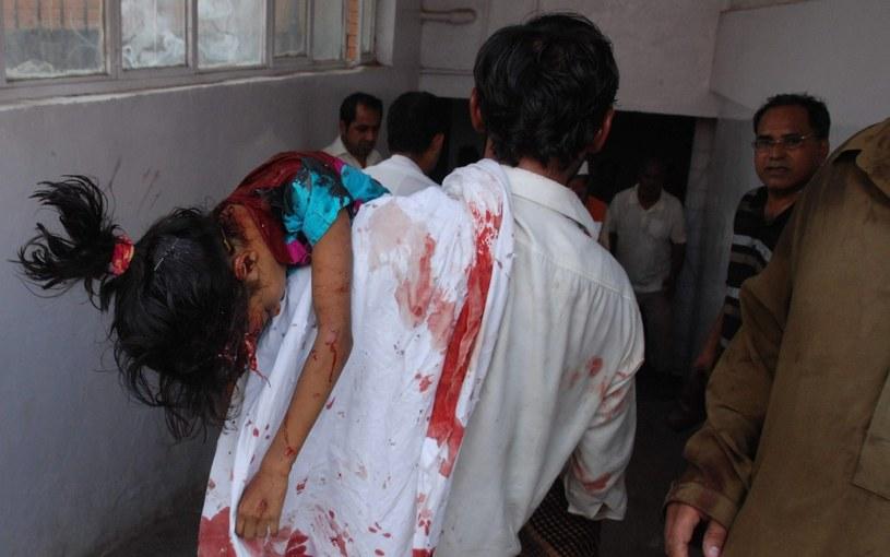 Jedno z rannych w zamachu dzieci /PAP/EPA