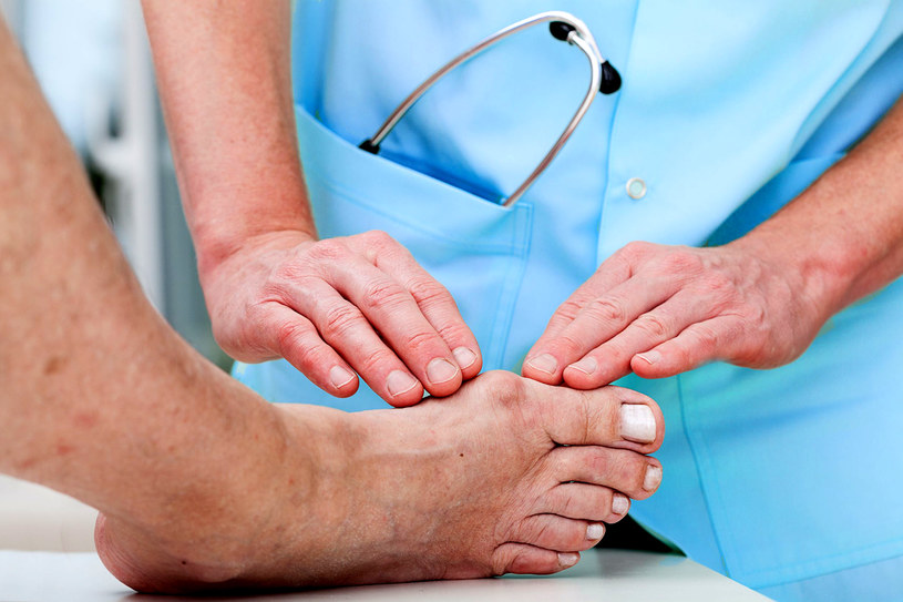 Jeśli doraźne środki nie działają, koniecznie poradź się lekarza specjalisty /©123RF/PICSEL