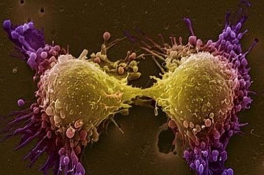 Już wiadomo jak zamienić komórkę nowotworową w zdrową. Teraz czas na odpowiednią terapię (Fot. Ludwig Boltzmann Institute for Cancer Research) /materiały prasowe