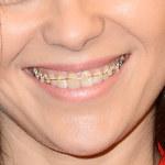 Kasia Cichopek w aparacie ortodontycznym wspiera WOŚP