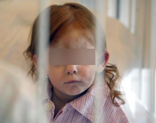 Szpital w Zabrzu: 3-letnia Kinga, jedna z sióstr bliźniaczek, które zostały pobite przez rodziców, fot. Paweł de Ville