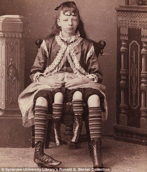 """Kobieta z """"czterema nogami"""" /Agnieszka Lisak – blog historyczno-obyczajowy"""