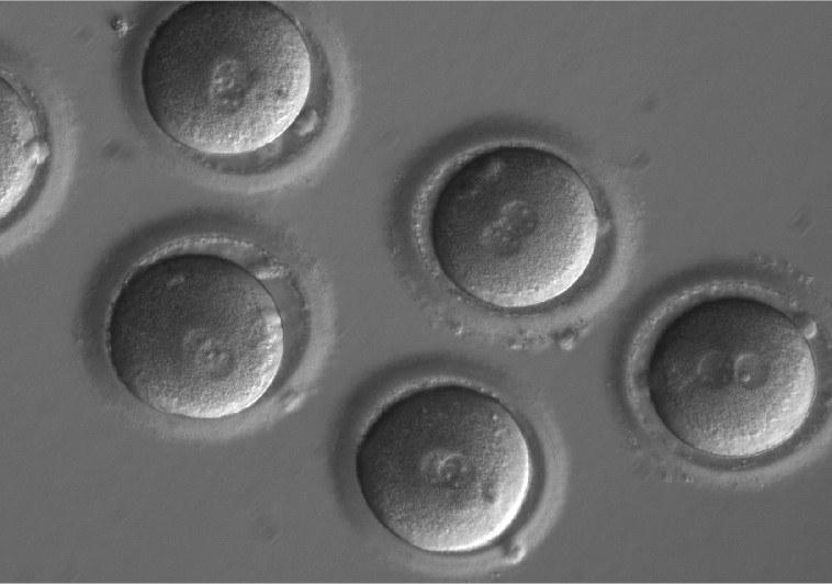 Komórki jajowe tuż po zapłodnieniu /OHSU/Mitalipov lab /materiały prasowe