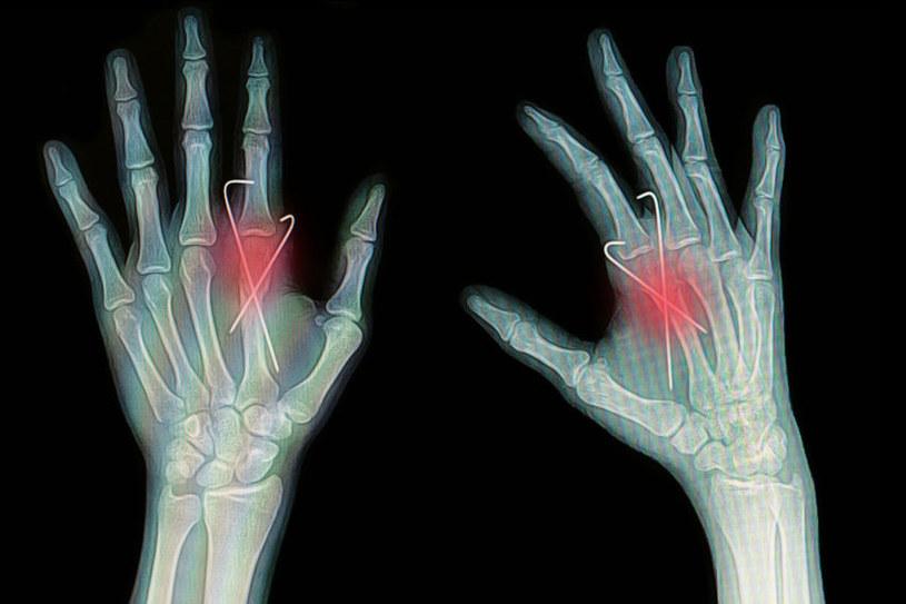 Komórki macierzyste odgrywają ważną rolę w procesie regeneracji uszkodzonych kości /123RF/PICSEL