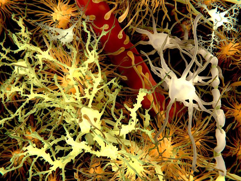 Komórki mózgu - astrocyty zaznaczono tu na pomarańczowy kolor /123RF/PICSEL