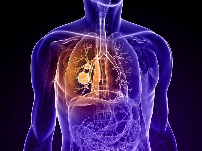 Kuba od 1992 r. pracuje nad szczepionką na raka płuc. Efekty już są widoczne /©123RF/PICSEL