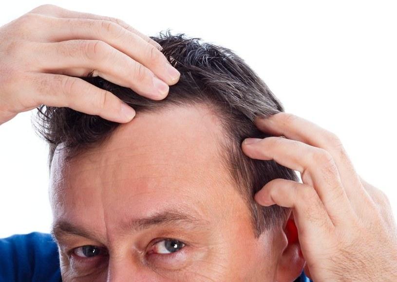 Leki przeciwko łysieniu mogą być niebezpieczne /©123RF/PICSEL