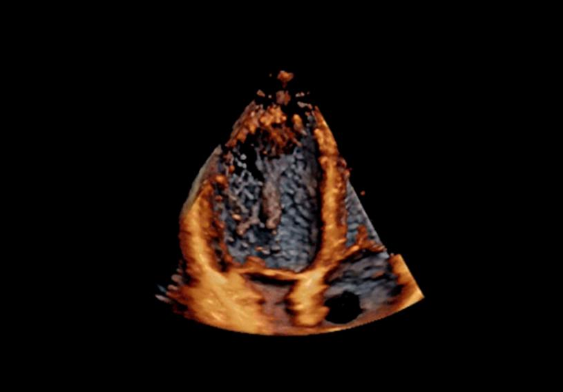 Lewy przedsionek i lewa komora serca przedzielone zastawką przedsionkowo-komorową /materiały prasowe