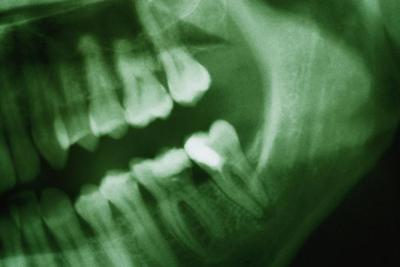 Ludzie pierwotni nie leczyli ubytków, ale i tak mieli dużo zdrowsze zęby od nas /© Glowimages