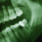 Ludzie prehistoryczni mieli zęby zdrowsze od naszych?