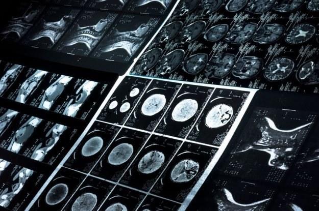 Mechanizmy powstawania zepsołu AT są podobne do Parkinsona i Alzheimera /123RF/PICSEL
