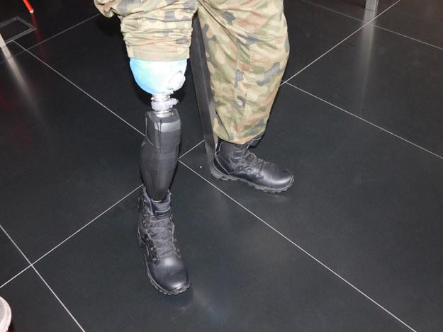 """""""Miałem nogę, teraz jej nie mam, jest sztuczna"""" /Artur Wróblewski /INTERIA.PL"""