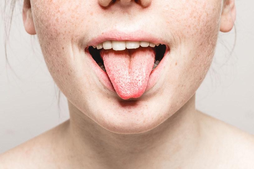 Między stanem naszej jamy ustnej a zdrowiem ogólnym istnieje ścisły związek /©123RF/PICSEL