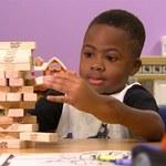 Mózg dziecka przeorganizował się po podwójnym przeszczepie rąk