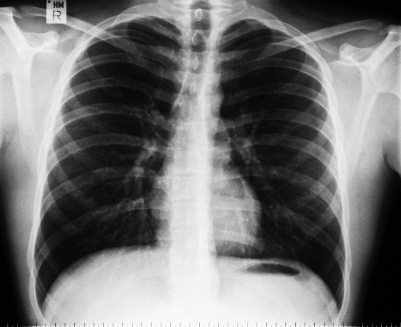 Na podstawie zdjęć klatki piersiowej, komputer określi naszą przewidywaną długość życia /123RF/PICSEL