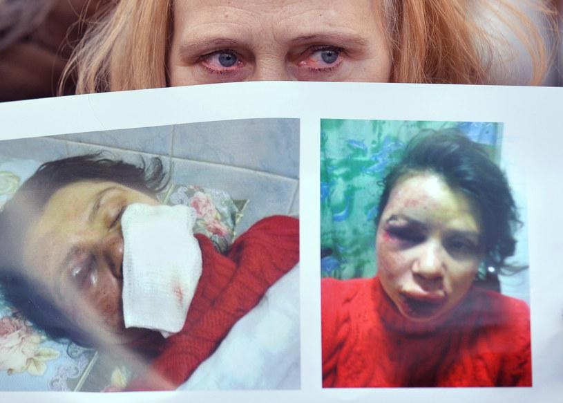 Na zdjęciach obita ukraińska dziennikarka śledcza Tetiana Czornowoł /AFP