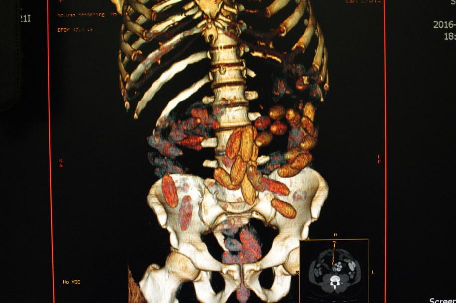Na zdjęciu udostępnionym przez Izbę Celną obraz tomografu jamy brzusznej z zawartością kapsułek z narkotykami /Służba Celna /PAP