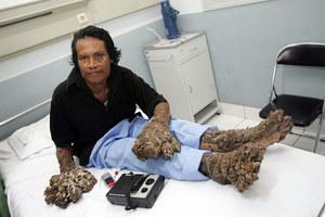 Najdziwniejsze choroby świata