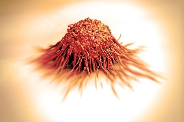 Nasz organizm pokonuje raka każdego dnia /123RF/PICSEL