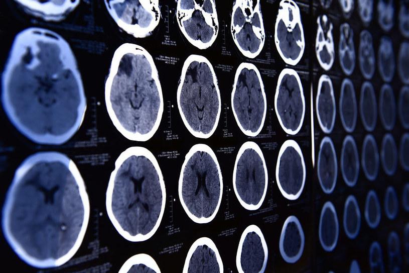 Naukowcom udało się wyłączyć odczuwanie bólu w mózgu pacjentów /123RF/PICSEL