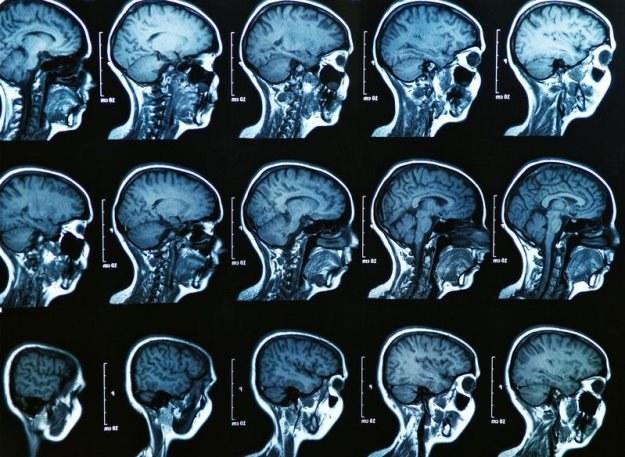 Naukowcy nie wiedzą co dolega Corbinowi Durantowi. Jego mózg stale się kurczy! /123RF/PICSEL