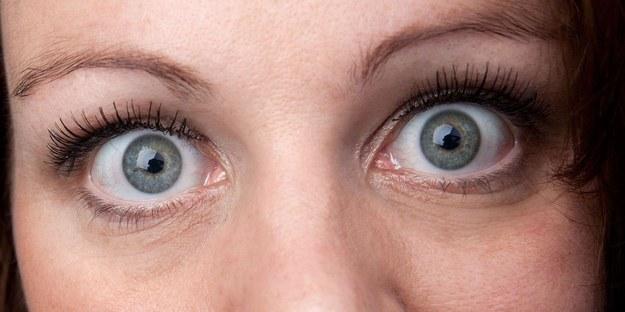Nieleczony wytrzeszcz oczu może prowadzić nawet do całkowitej utraty wzroku /123/RF PICSEL
