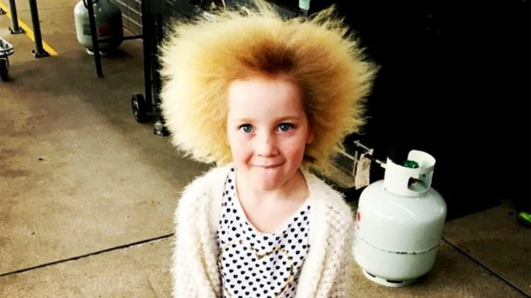 Niezwykłe włosy Shilah są wynikiem rzadkiego schorzenia /Internet