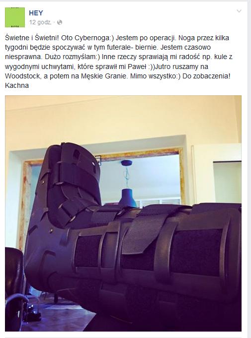 Noga Katarzyny Nosowskiej w specjalnym bucie /
