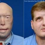 Nowa era chirurgii regeneracyjnej. Strażak po przeszczepie twarzy wrócił do życia
